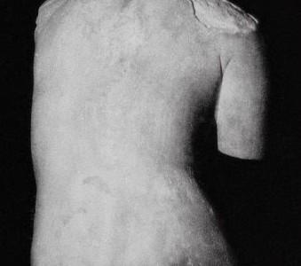 Scoliosi 3D