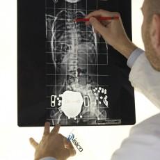 Radiografie per scoliosi: quanto fanno male?