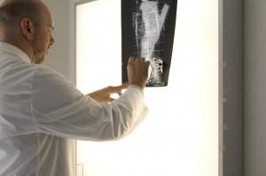 radiografie pazienti scoliosi