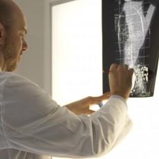 Radiografie per scoliosi: le raccomandazioni di SOSORT
